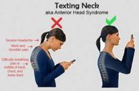 Texting Neck